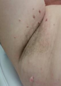 skin tags underarm