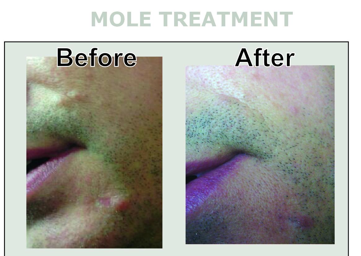 Mole treatmentremoval at inskin altrincham manchester book solutioingenieria Image collections