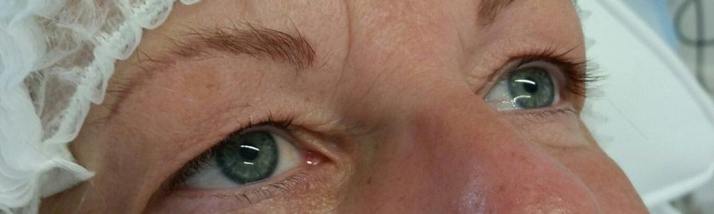 before-lash-enhancer-2