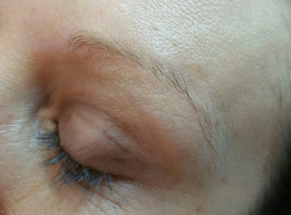 eyebrow-before-microblading
