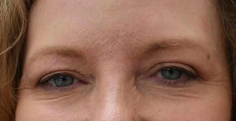 julies-eyes-after