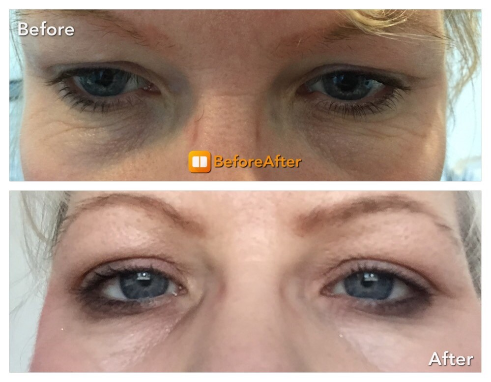 plexr eyelidids 2 before and after