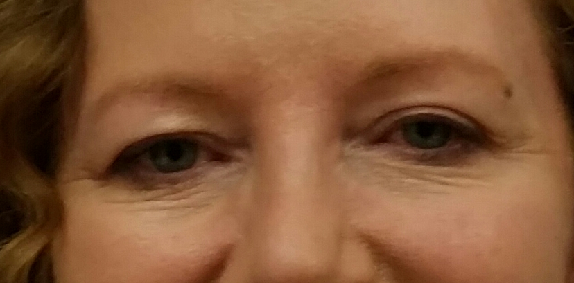 eyes-before-treatment