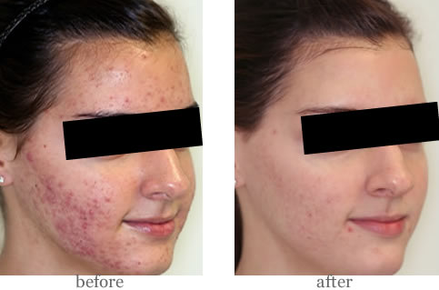 dermalux acne_before_after