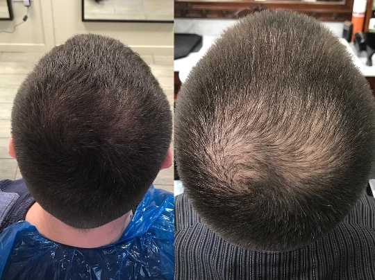 Scalp Follicle Pigmentation Balding And Thinning Hair
