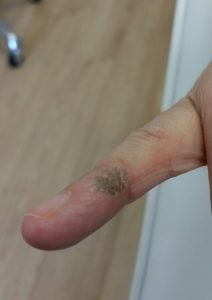 Wart Removal at Inskin Clinic in Altrincham, Manchester