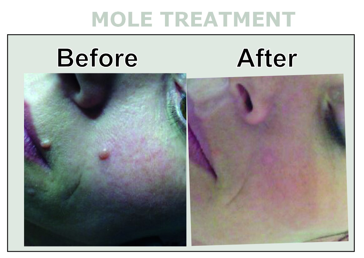 Mole Treatment/Removal at Inskin Altrincham, Manchester