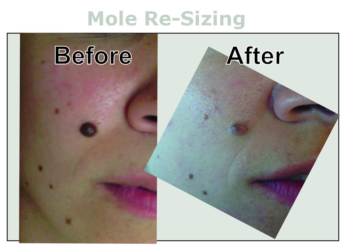 Mole Treatment/Removal at Inskin Altrincham, Manchester