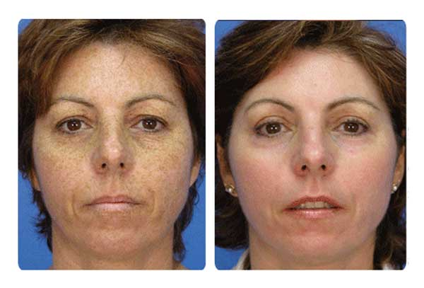 microsdermabrasion-before-and-after