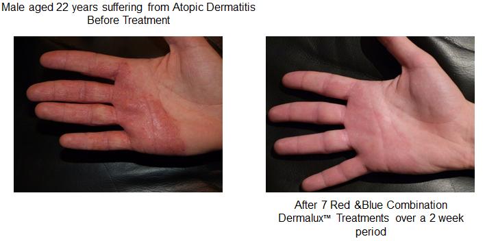 Dermalux male-hand