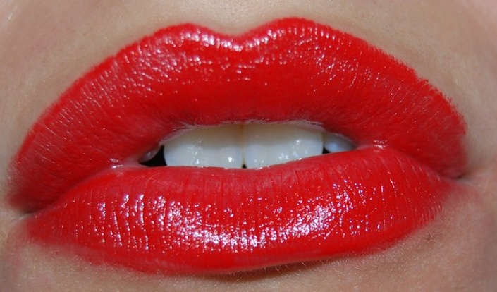 Lip Filler Masterclass