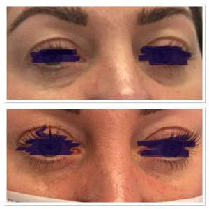 Tear Troughs showing before and after treatment